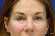 Brow Lift Before Photo by Ricardo Rodriguez, MD; Lutherville-Timonium, MD - Case 32536