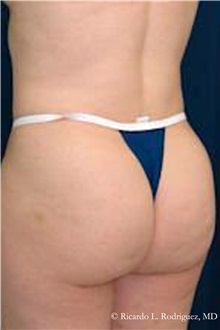 Buttock Lift with Augmentation After Photo by Ricardo Rodriguez, MD; Lutherville-Timonium, MD - Case 32538