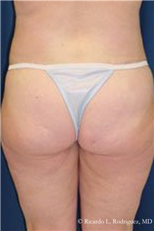 Buttock Lift with Augmentation After Photo by Ricardo Rodriguez, MD; Lutherville-Timonium, MD - Case 32539