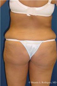 Buttock Lift with Augmentation Before Photo by Ricardo Rodriguez, MD; Lutherville-Timonium, MD - Case 32540