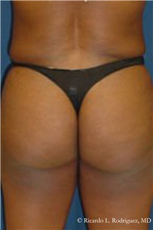 Buttock Lift with Augmentation After Photo by Ricardo Rodriguez, MD; Lutherville-Timonium, MD - Case 32541