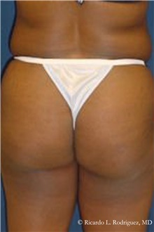 Buttock Lift with Augmentation Before Photo by Ricardo Rodriguez, MD; Lutherville-Timonium, MD - Case 32541