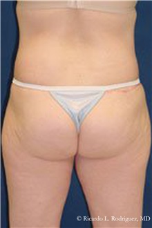 Buttock Lift with Augmentation After Photo by Ricardo Rodriguez, MD; Lutherville-Timonium, MD - Case 32542