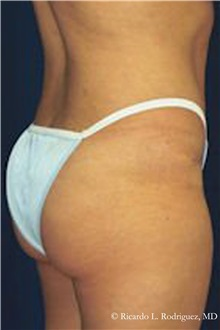 Buttock Lift with Augmentation After Photo by Ricardo Rodriguez, MD; Lutherville-Timonium, MD - Case 32543