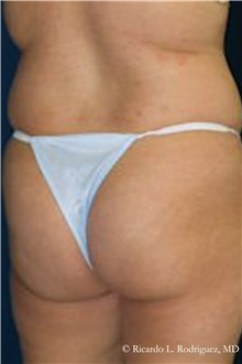 Buttock Lift with Augmentation Before Photo by Ricardo Rodriguez, MD; Lutherville-Timonium, MD - Case 32543