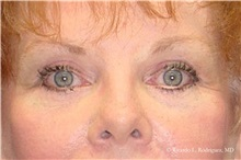 Eyelid Surgery After Photo by Ricardo Rodriguez, MD; Lutherville-Timonium, MD - Case 32544