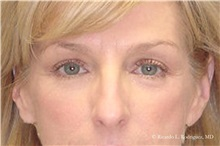 Eyelid Surgery After Photo by Ricardo Rodriguez, MD; Lutherville-Timonium, MD - Case 32545
