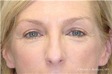 Eyelid Surgery Before Photo by Ricardo Rodriguez, MD; Lutherville-Timonium, MD - Case 32545