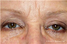 Eyelid Surgery After Photo by Ricardo Rodriguez, MD; Lutherville-Timonium, MD - Case 32546