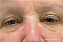 Eyelid Surgery Before Photo by Ricardo Rodriguez, MD; Lutherville-Timonium, MD - Case 32546