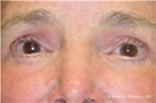 Eyelid Surgery After Photo by Ricardo Rodriguez, MD; Lutherville-Timonium, MD - Case 32547