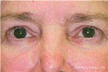 Eyelid Surgery Before Photo by Ricardo Rodriguez, MD; Lutherville-Timonium, MD - Case 32547