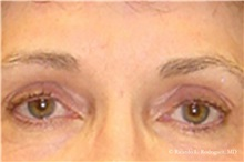 Eyelid Surgery After Photo by Ricardo Rodriguez, MD; Lutherville-Timonium, MD - Case 32548