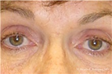 Eyelid Surgery Before Photo by Ricardo Rodriguez, MD; Lutherville-Timonium, MD - Case 32548