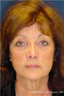 Facelift After Photo by Ricardo Rodriguez, MD; Lutherville-Timonium, MD - Case 32551
