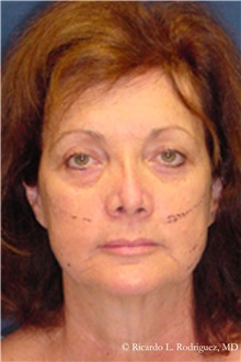 Facelift Before Photo by Ricardo Rodriguez, MD; Lutherville-Timonium, MD - Case 32551