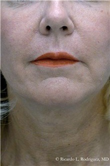 Facelift After Photo by Ricardo Rodriguez, MD; Lutherville-Timonium, MD - Case 32552