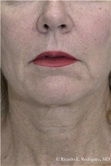 Facelift Before Photo by Ricardo Rodriguez, MD; Lutherville-Timonium, MD - Case 32552