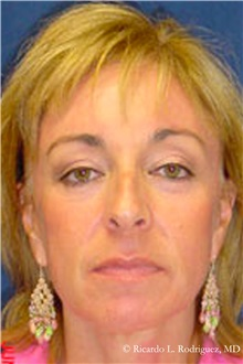 Facelift After Photo by Ricardo Rodriguez, MD; Lutherville-Timonium, MD - Case 32553
