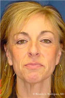Facelift Before Photo by Ricardo Rodriguez, MD; Lutherville-Timonium, MD - Case 32553