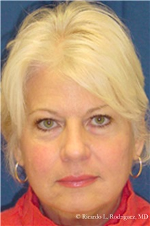 Facelift After Photo by Ricardo Rodriguez, MD; Lutherville-Timonium, MD - Case 32554