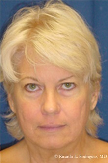 Facelift Before Photo by Ricardo Rodriguez, MD; Lutherville-Timonium, MD - Case 32554