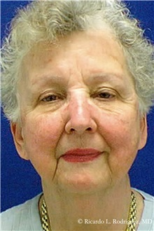 Facelift Before Photo by Ricardo Rodriguez, MD; Lutherville-Timonium, MD - Case 32555