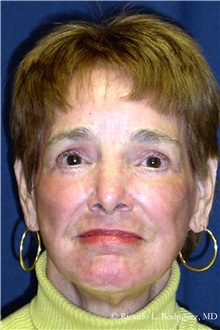 Facelift After Photo by Ricardo Rodriguez, MD; Lutherville-Timonium, MD - Case 32556