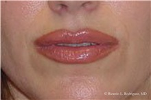 Lip Augmentation / Enhancement After Photo by Ricardo Rodriguez, MD; Lutherville-Timonium, MD - Case 32557