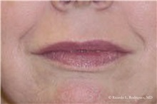 Lip Augmentation / Enhancement After Photo by Ricardo Rodriguez, MD; Lutherville-Timonium, MD - Case 32558
