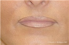 Lip Augmentation / Enhancement After Photo by Ricardo Rodriguez, MD; Lutherville-Timonium, MD - Case 32559