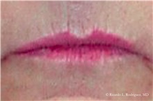 Lip Augmentation / Enhancement Before Photo by Ricardo Rodriguez, MD; Lutherville-Timonium, MD - Case 32560