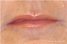 Lip Augmentation / Enhancement After Photo by Ricardo Rodriguez, MD; Lutherville-Timonium, MD - Case 32561