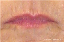 Lip Augmentation / Enhancement Before Photo by Ricardo Rodriguez, MD; Lutherville-Timonium, MD - Case 32561