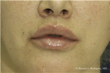 Lip Augmentation / Enhancement After Photo by Ricardo Rodriguez, MD; Lutherville-Timonium, MD - Case 32563