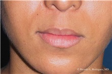 Lip Augmentation / Enhancement Before Photo by Ricardo Rodriguez, MD; Lutherville-Timonium, MD - Case 32564