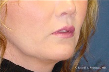Lip Augmentation / Enhancement After Photo by Ricardo Rodriguez, MD; Lutherville-Timonium, MD - Case 32566