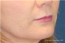 Lip Augmentation / Enhancement Before Photo by Ricardo Rodriguez, MD; Lutherville-Timonium, MD - Case 32566