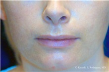Lip Augmentation / Enhancement Before Photo by Ricardo Rodriguez, MD; Lutherville-Timonium, MD - Case 32567
