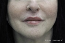 Lip Augmentation / Enhancement After Photo by Ricardo Rodriguez, MD; Lutherville-Timonium, MD - Case 32587