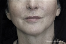 Lip Augmentation / Enhancement Before Photo by Ricardo Rodriguez, MD; Lutherville-Timonium, MD - Case 32587