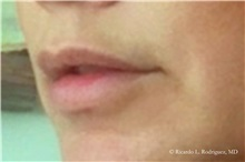 Lip Augmentation / Enhancement Before Photo by Ricardo Rodriguez, MD; Lutherville-Timonium, MD - Case 32588