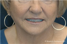 Facelift After Photo by Ricardo Rodriguez, MD; Lutherville-Timonium, MD - Case 32590
