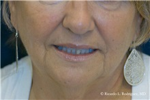 Facelift Before Photo by Ricardo Rodriguez, MD; Lutherville-Timonium, MD - Case 32590