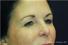 Brow Lift Before Photo by Ricardo Rodriguez, MD; Lutherville-Timonium, MD - Case 32591