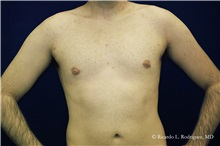 Male Breast Reduction After Photo by Ricardo Rodriguez, MD; Lutherville-Timonium, MD - Case 32592
