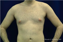 Male Breast Reduction Before Photo by Ricardo Rodriguez, MD; Lutherville-Timonium, MD - Case 32592