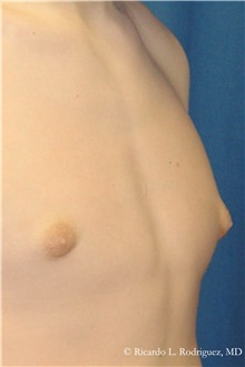 Male Breast Reduction After Photo by Ricardo Rodriguez, MD; Lutherville-Timonium, MD - Case 32593