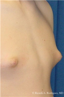 Male Breast Reduction Before Photo by Ricardo Rodriguez, MD; Lutherville-Timonium, MD - Case 32593