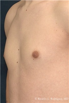 Male Breast Reduction After Photo by Ricardo Rodriguez, MD; Lutherville-Timonium, MD - Case 32594